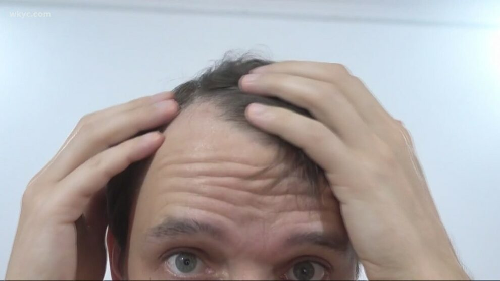 The New You: The COVID-19 pandemic, stress and hair loss